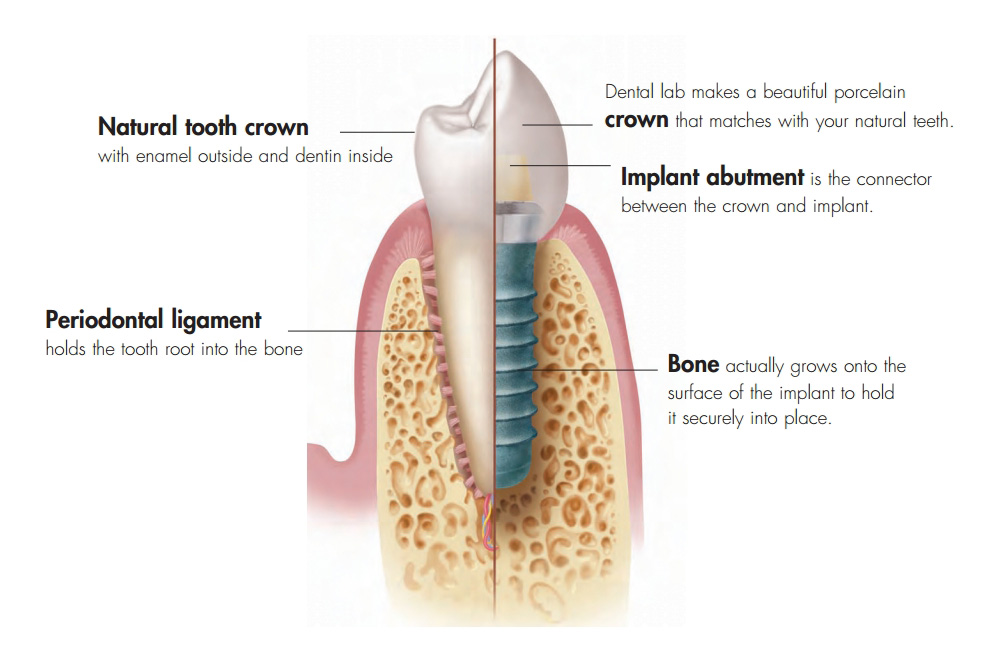 Dental Implants Palm Beach Gardens Garden Ftempo