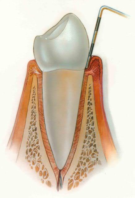 Gingivitis - Gum Disease