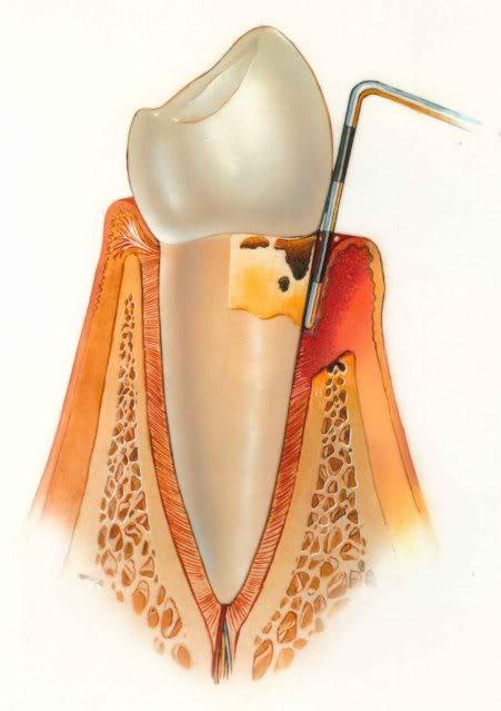 Moderate Periodontitis - Gum Disease