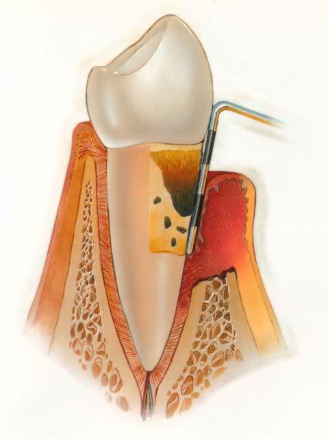 Severe Periodontitis - Gum Disease