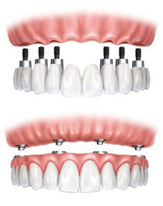 implantdentures