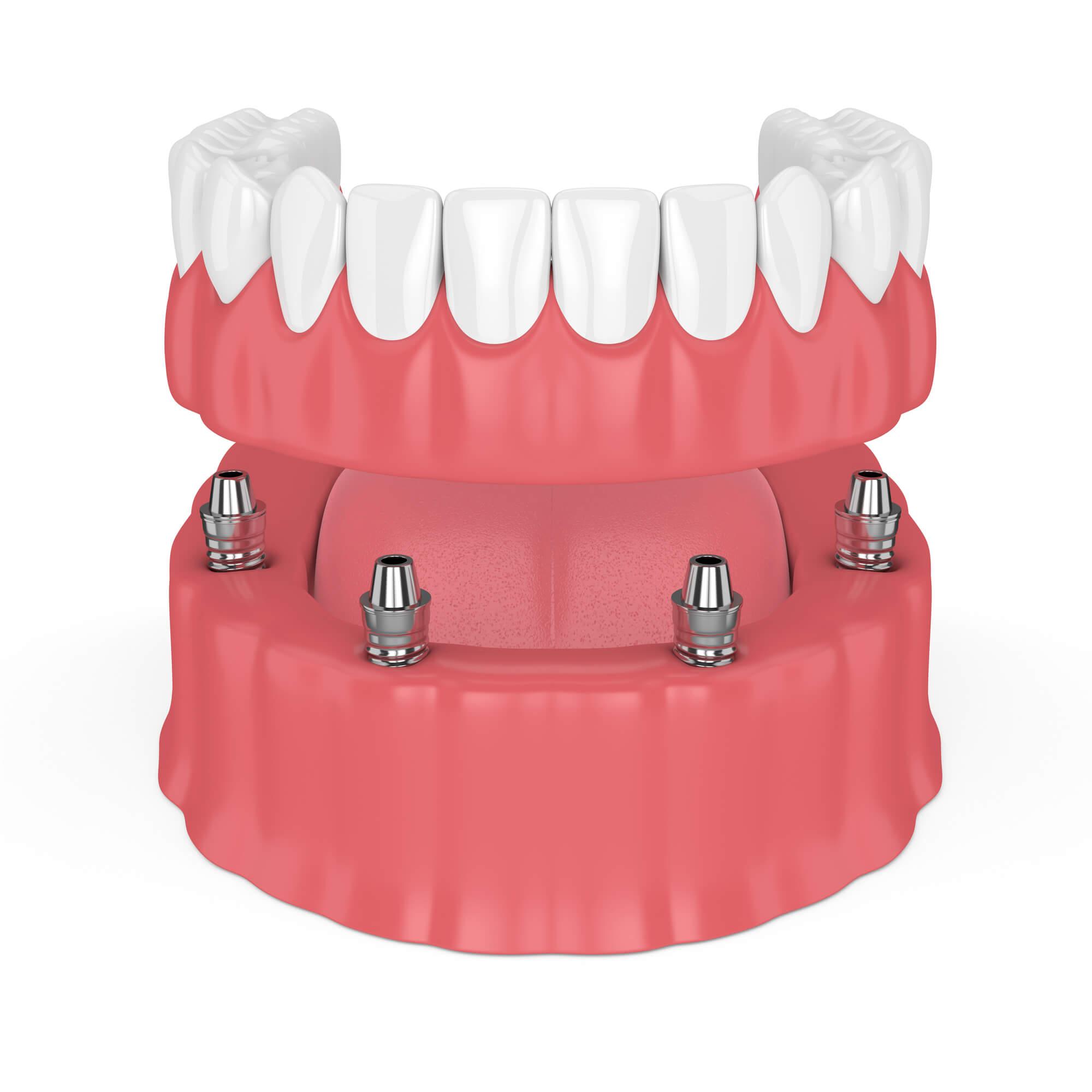 Dentures Palm Beach Gardens | 2 Main Types of Denture Implants