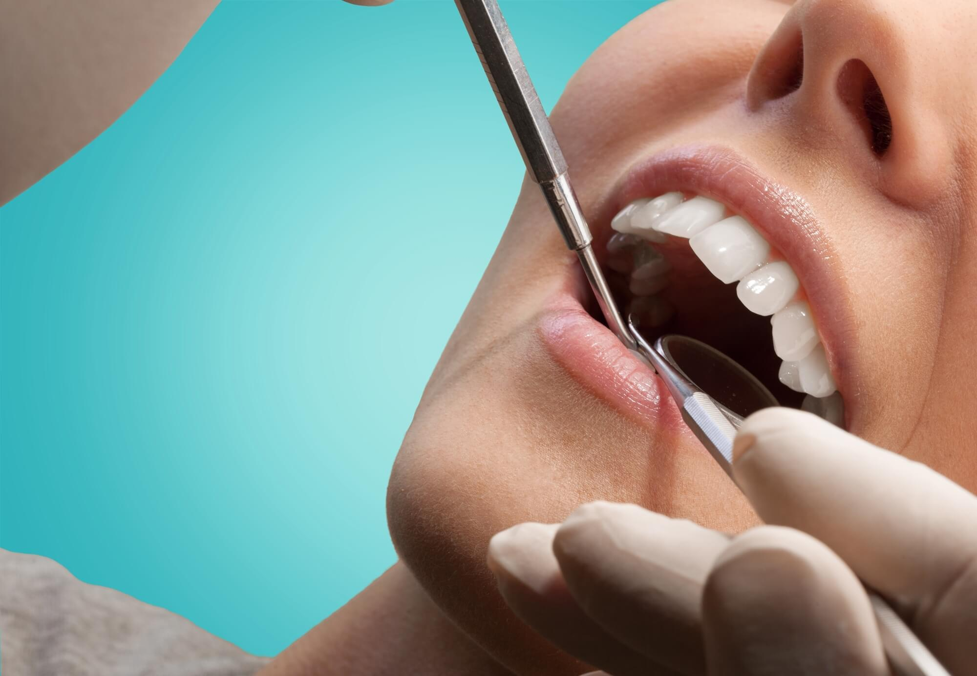 4 Replacement Options for People Who Have Missing Teeth
