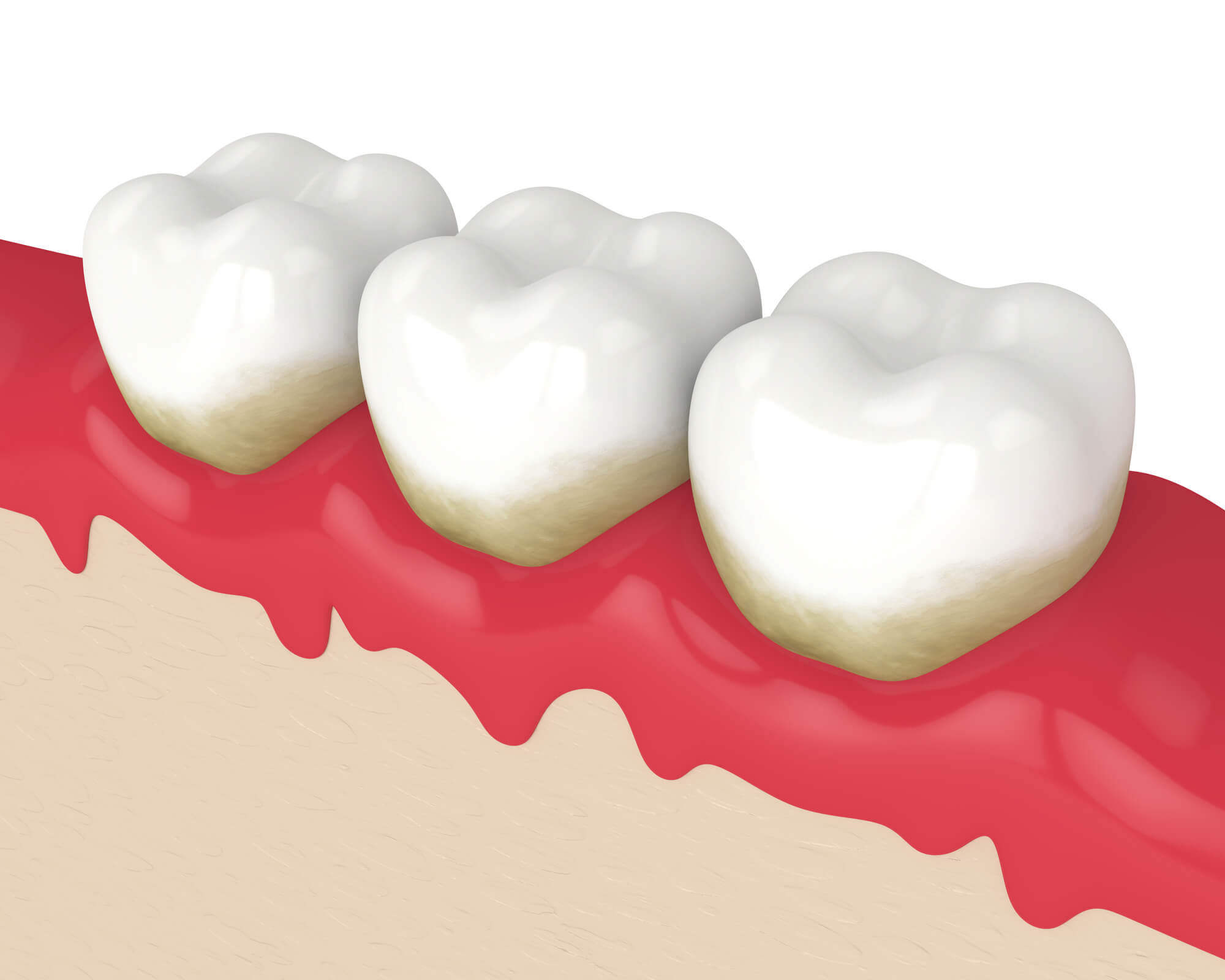 How Gum Disease Can Affect Your Body