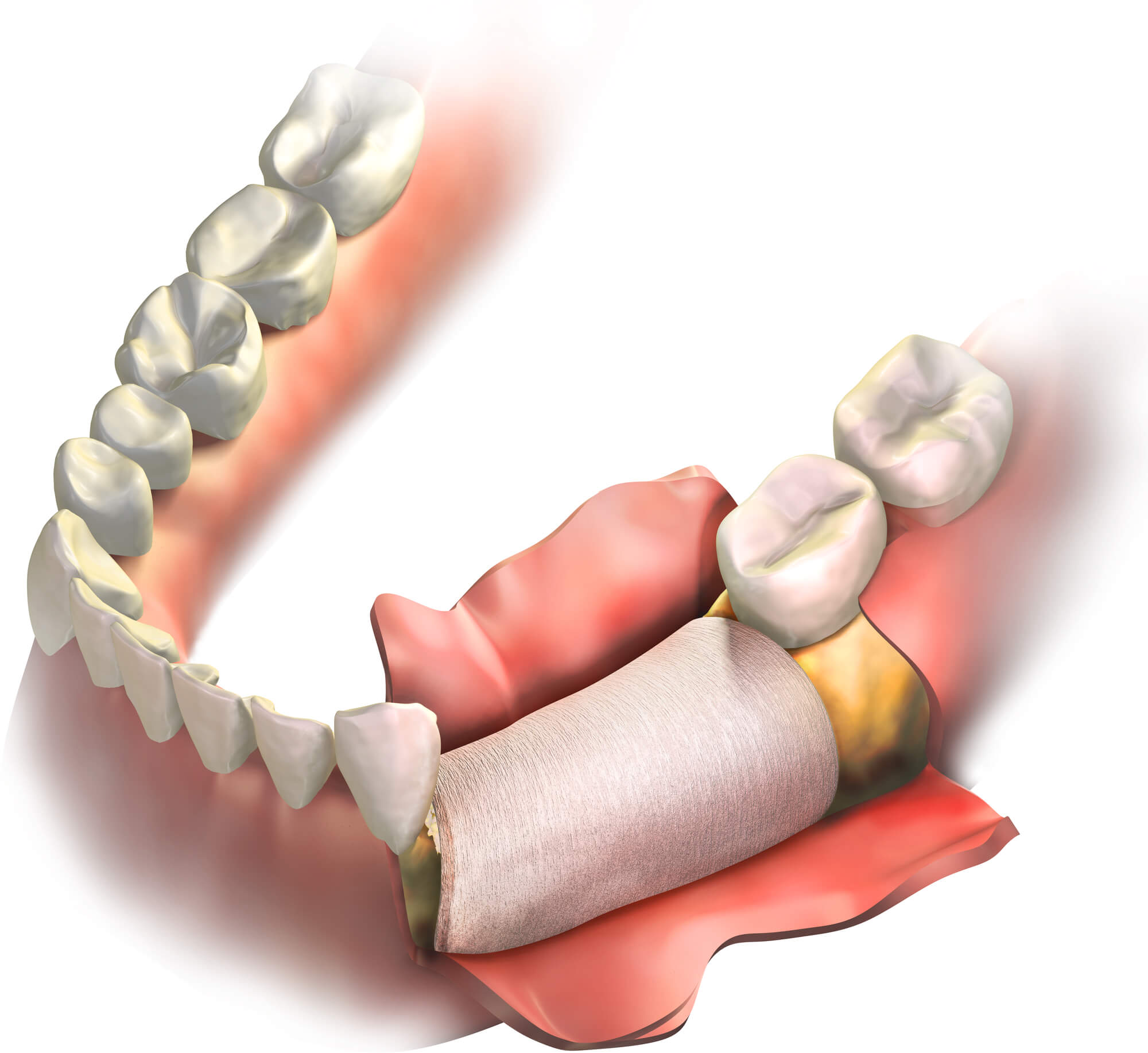 What are the Key Benefits of Gum Grafting?