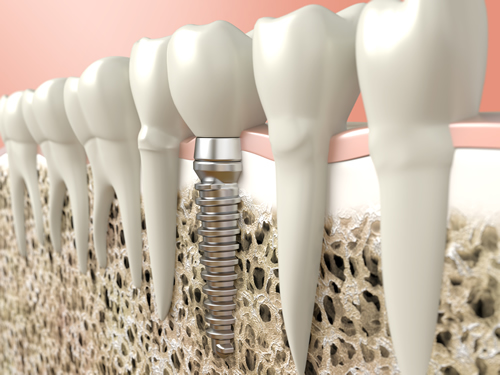 Natural Dental Implants in Palm Beach Gardens | 4 Facts About Dental Implants