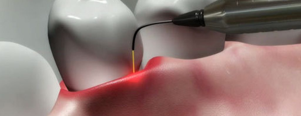 Who does laser dentistry palm beach gardens?