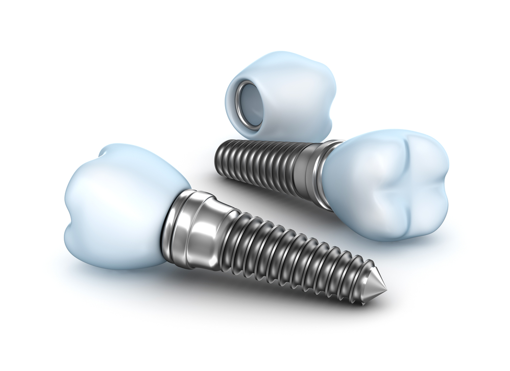 Holistic Implants in Palm Beach Gardens | Benefits of Implants