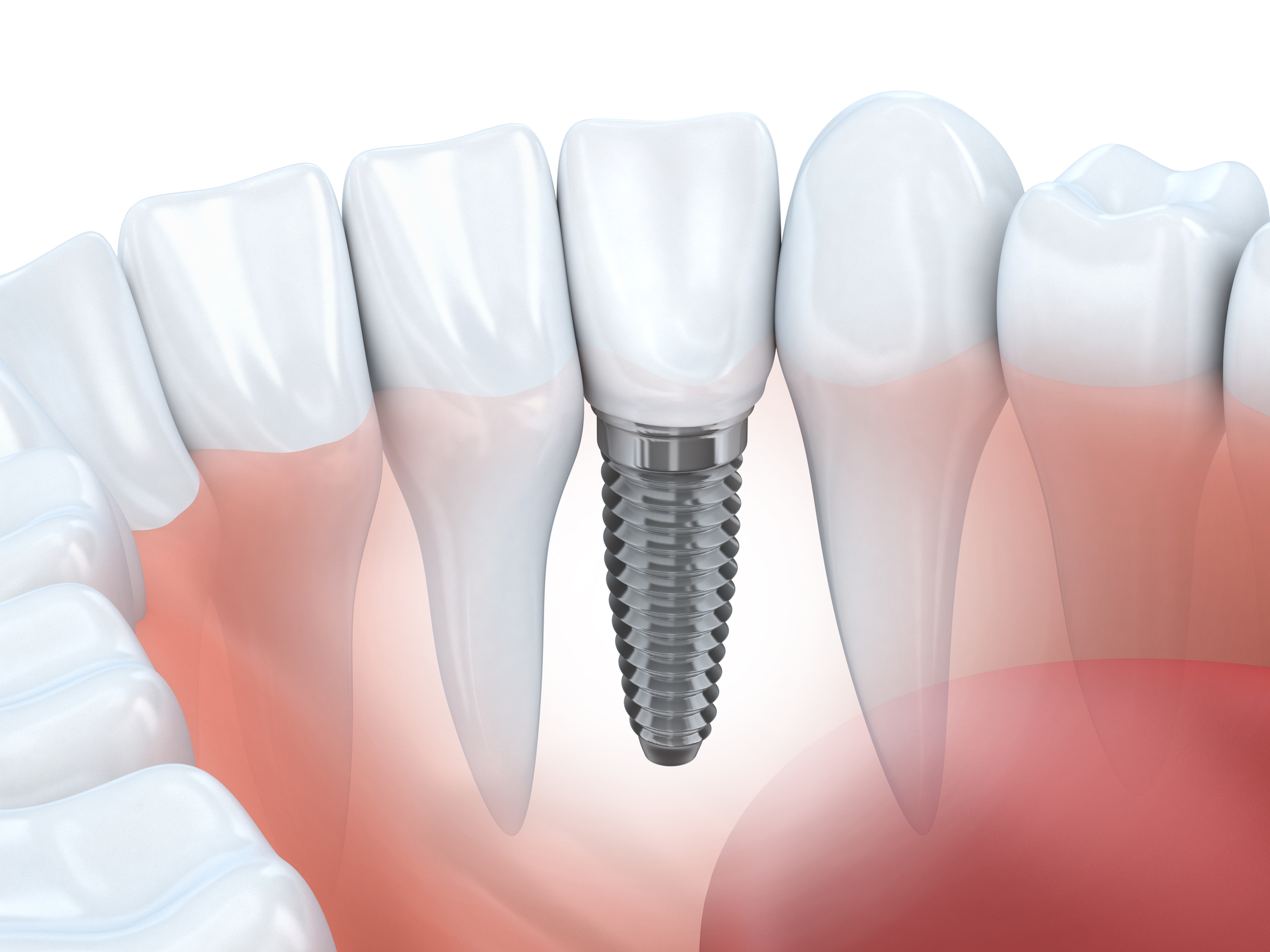 Who is the best dentist for Dental Implants in Palm Beach Gardens ?