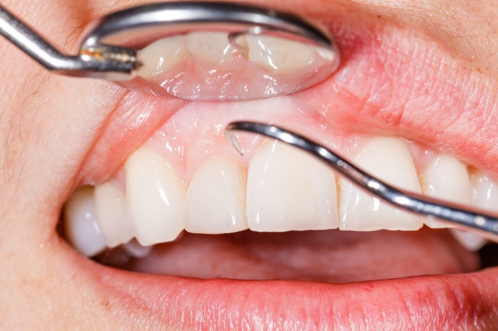 Who offers the best gum disease treatment in palm beach gardens?
