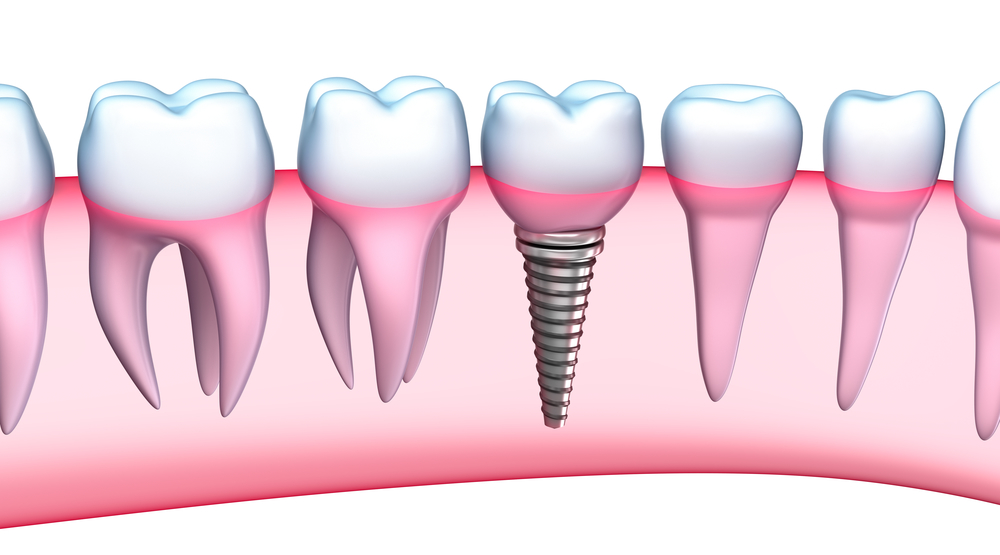 Dental Implants in Palm Beach Gardens | Caring for Your Dental Implant