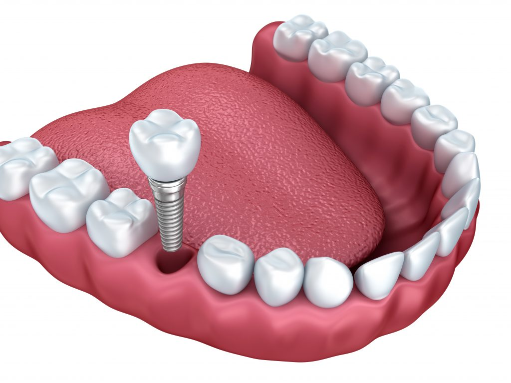 where can i get ceramic implants palm beach gardens ?