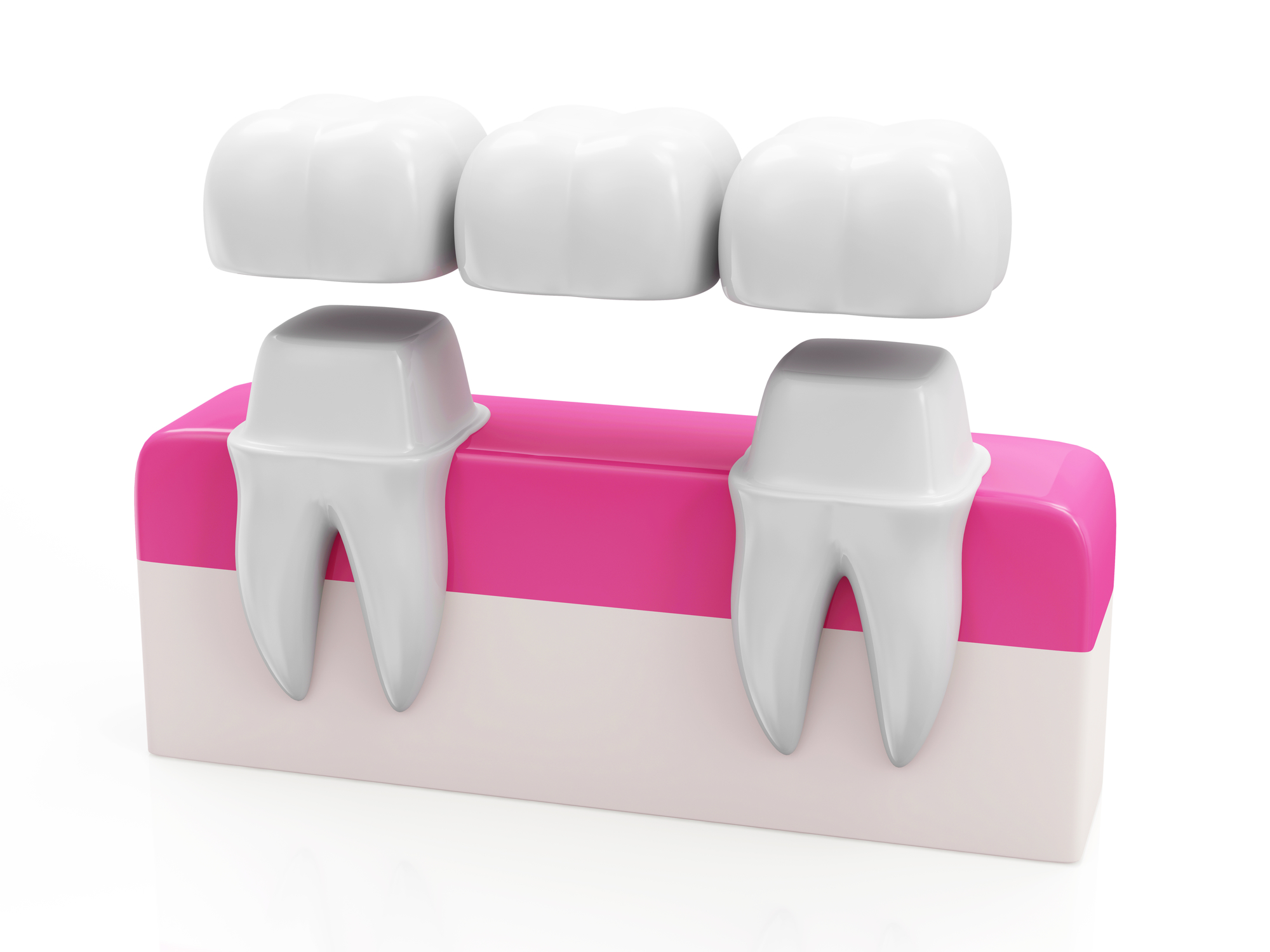 What are options for tooth replacement palm beach gardens?