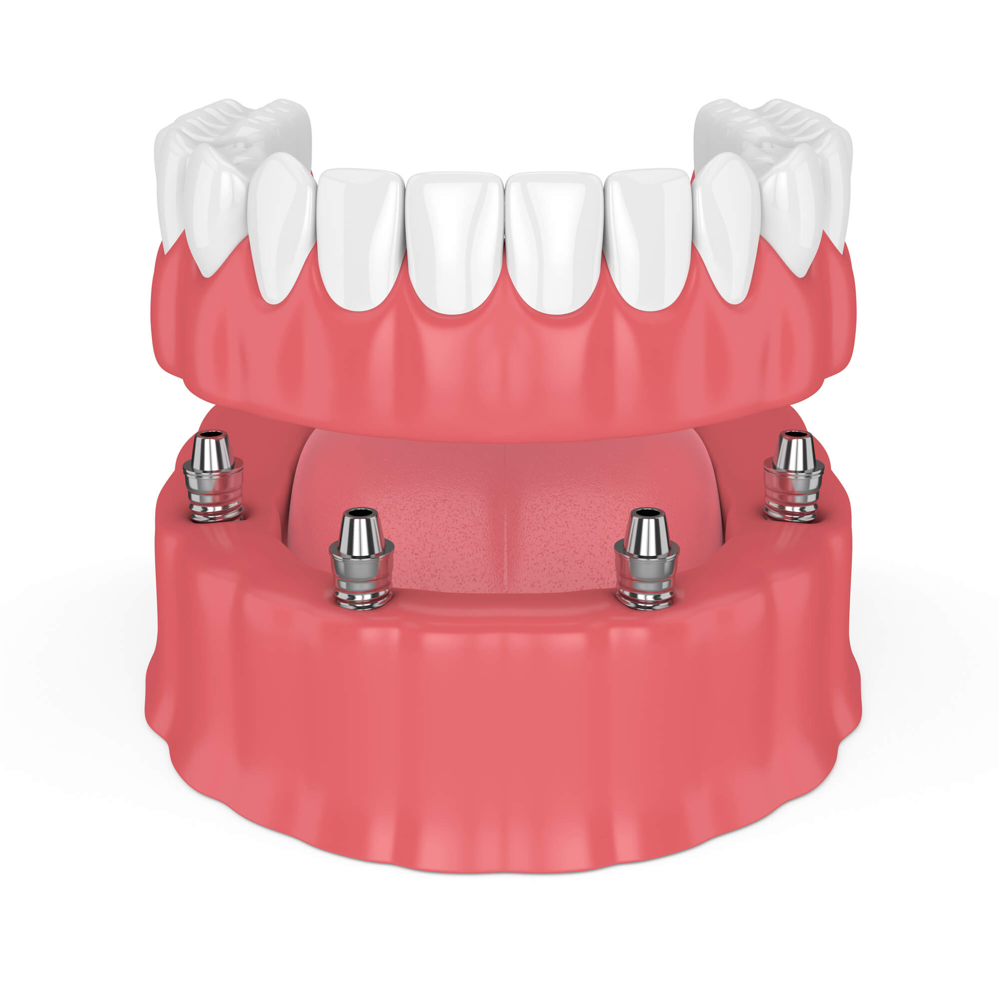 Dentures Palm Beach Gardens | 2 Main Types of Denture Implants