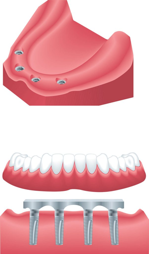 Where to find best dentures palm beach gardens?