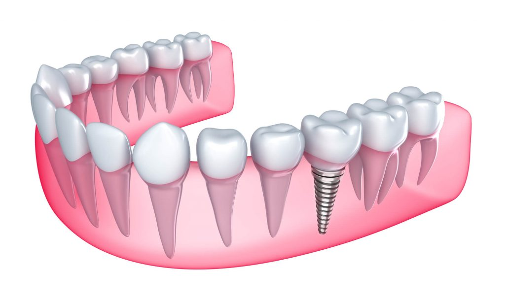 Where to get Natural Dental Implants Palm Beach Gardens?