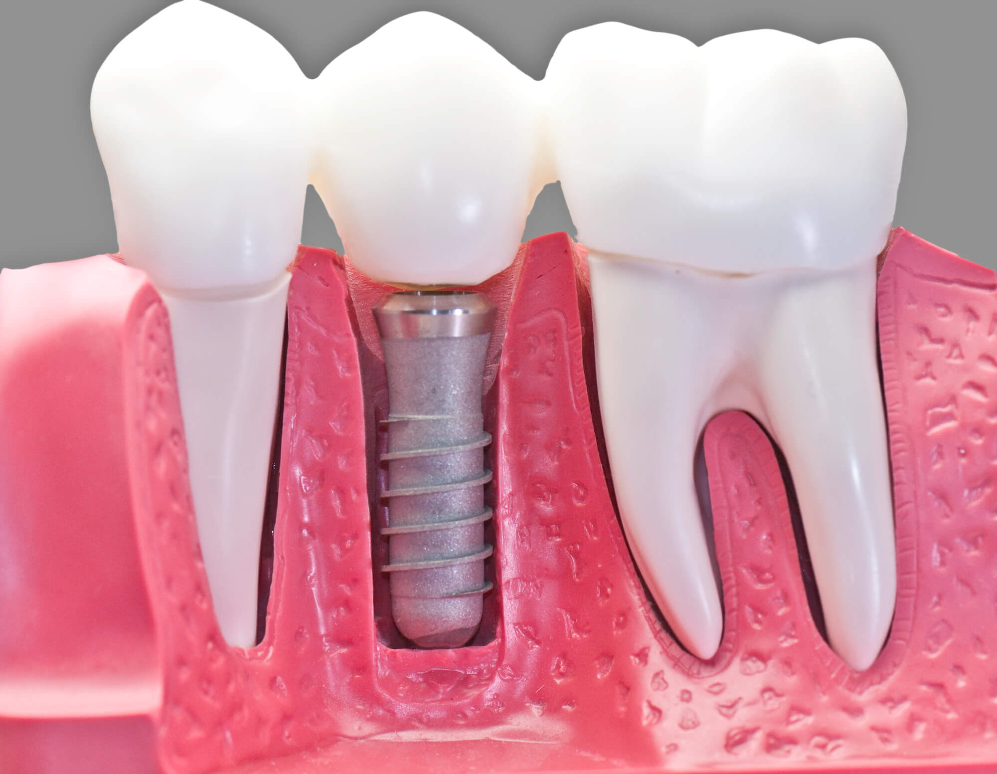 Where can I get Dental Implants Palm Beach Gardens?