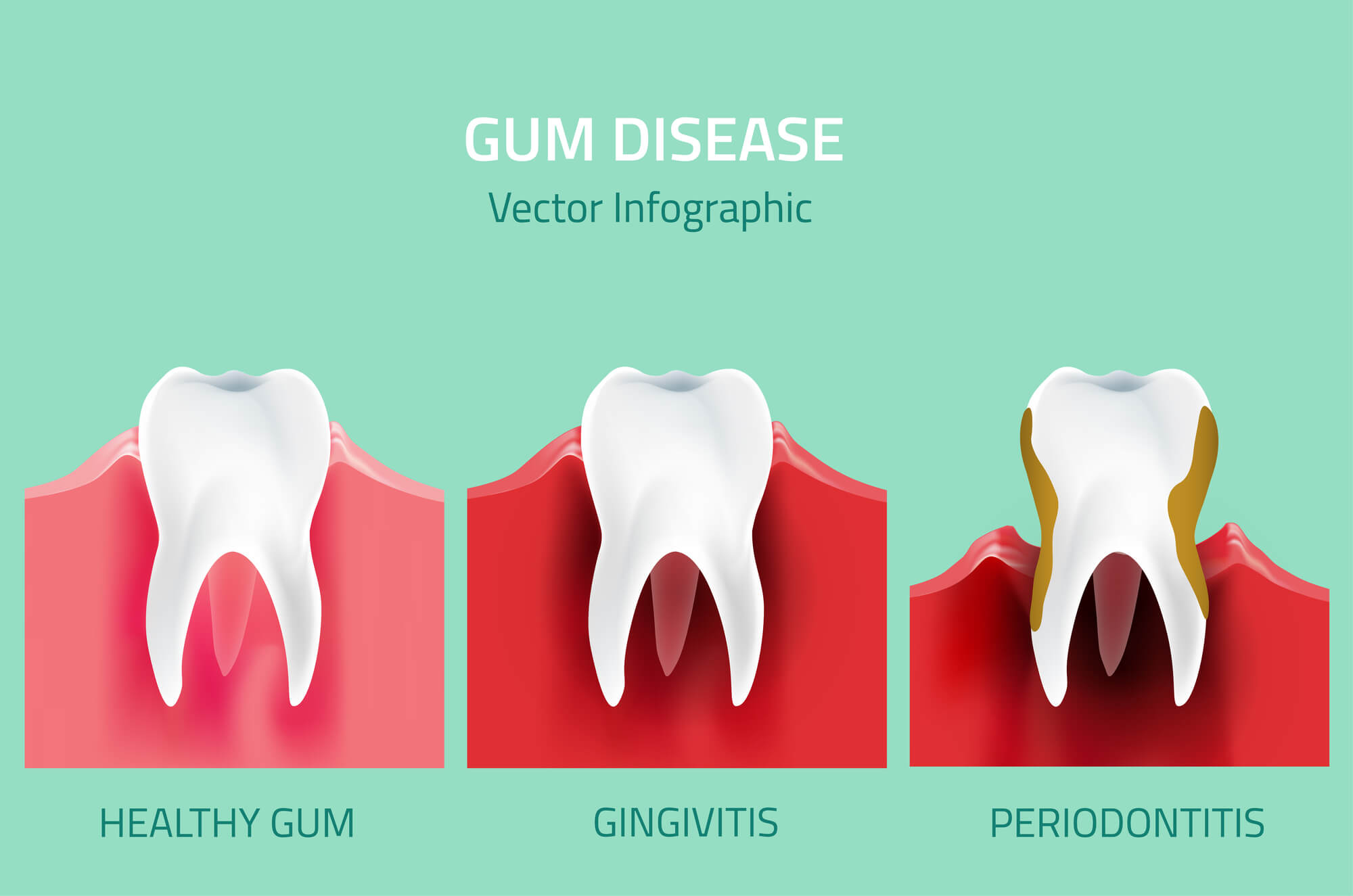 Where can i get Gum Disease Treatment Palm Beach Gardens?