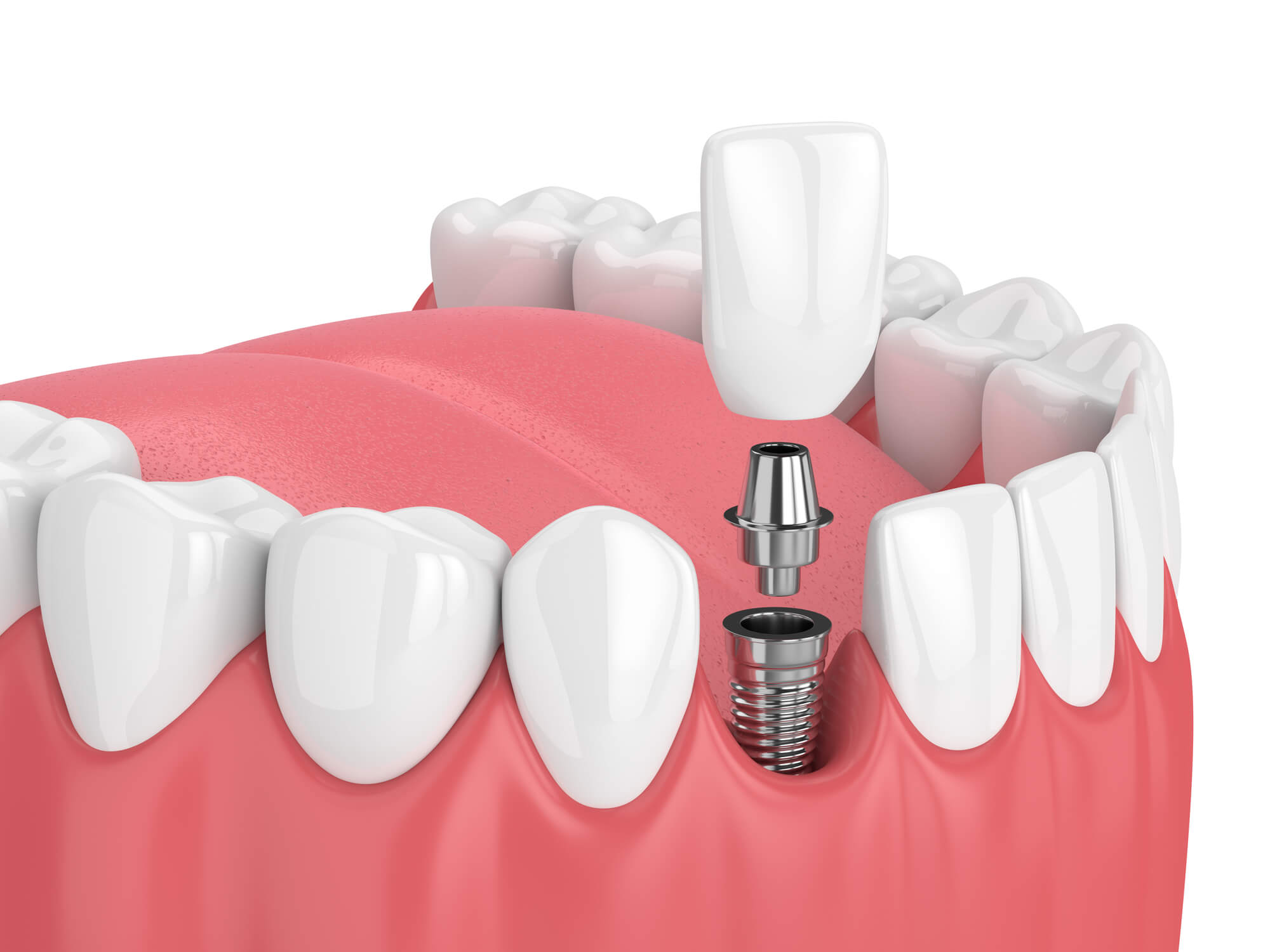 Where can i get Ceramic Implants Palm Beach Gardens?