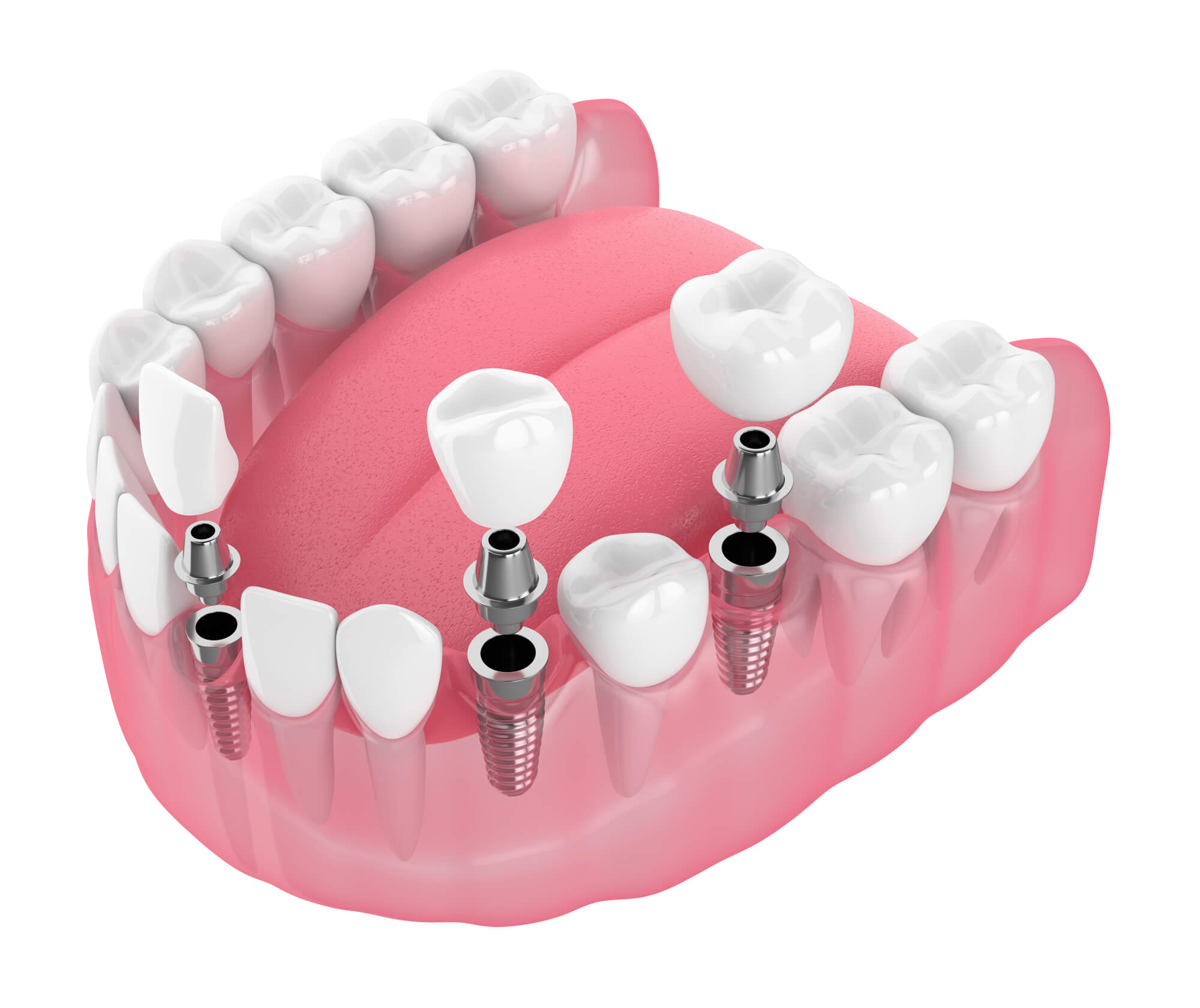 Why Should I Choose Ceramic Implants?