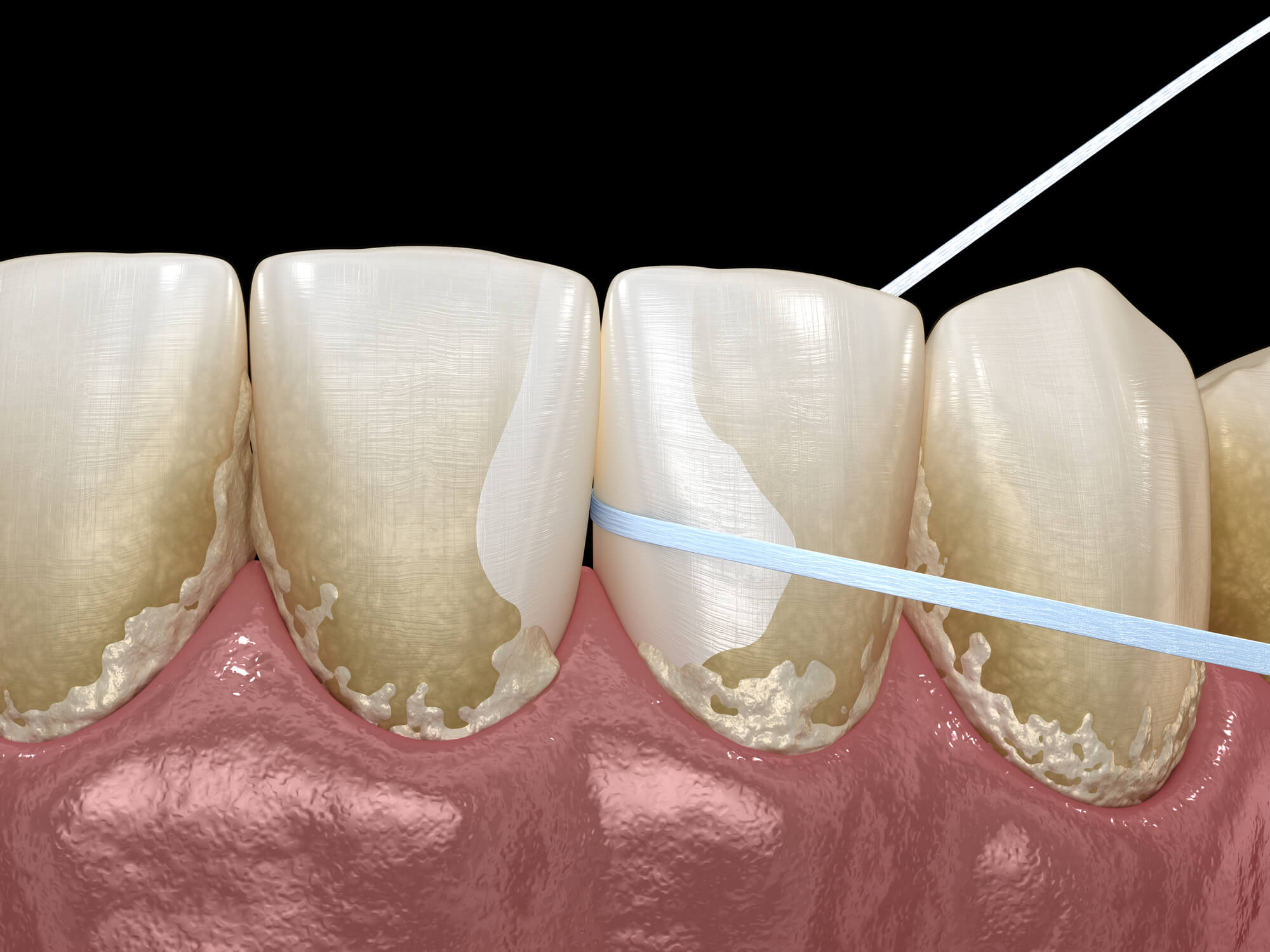 The Different Stages of Gum Disease