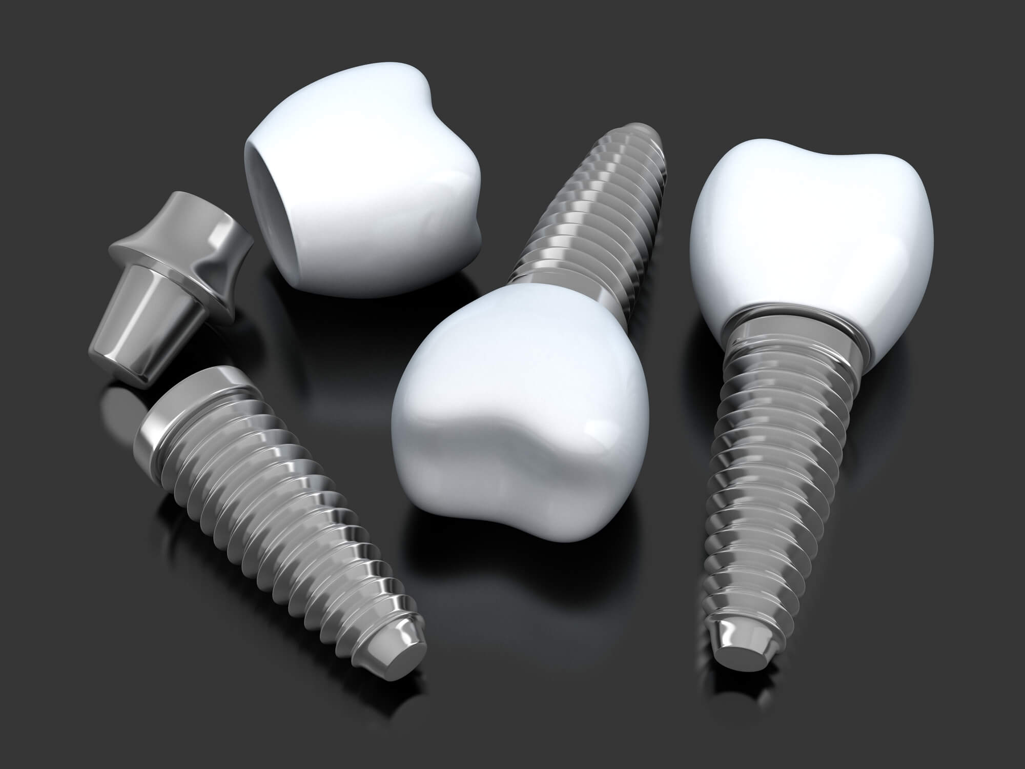 The Difference Between Dental Implants and Mini Implants