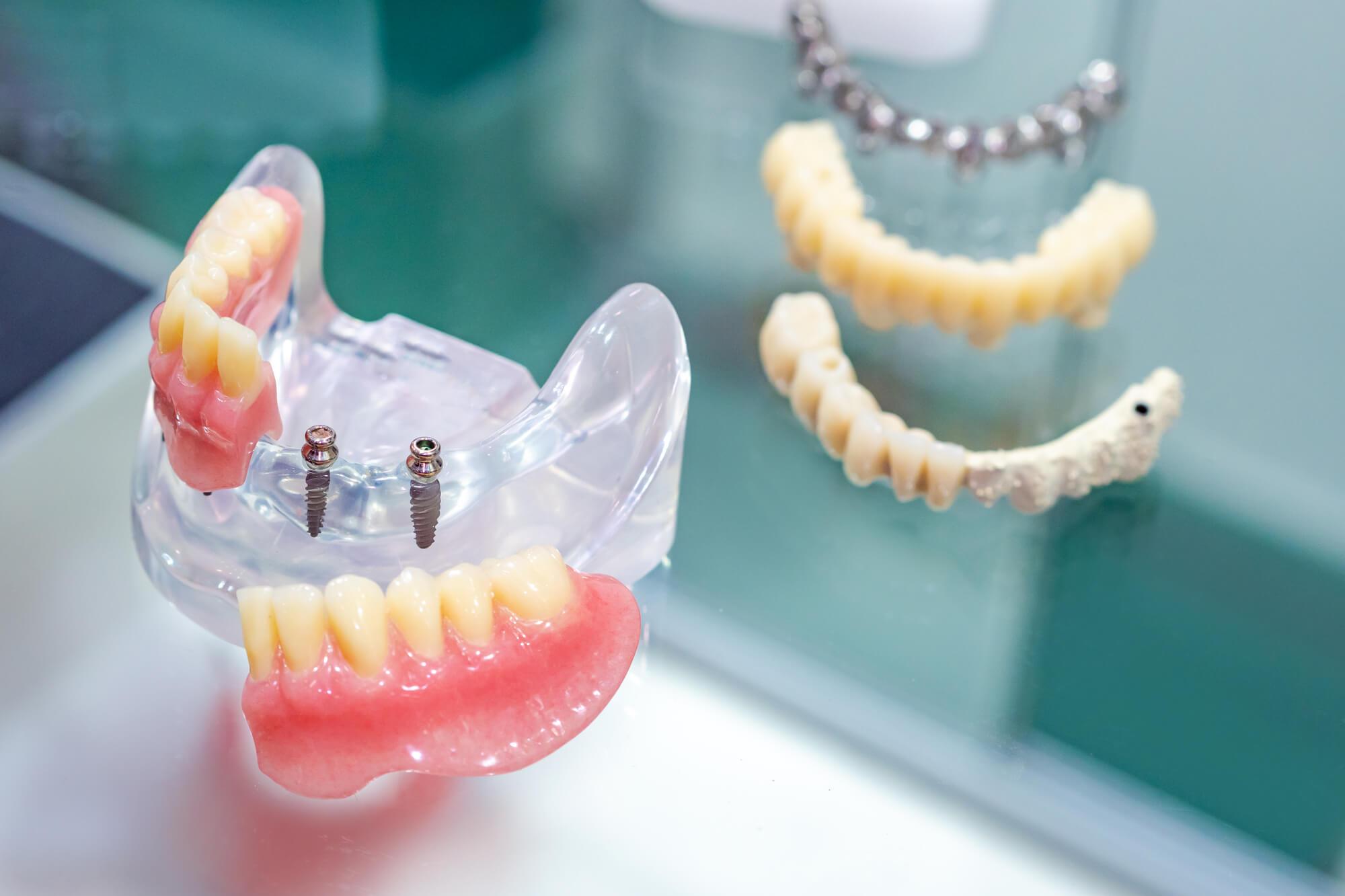 What are Mini Implants Palm Beach Gardens?