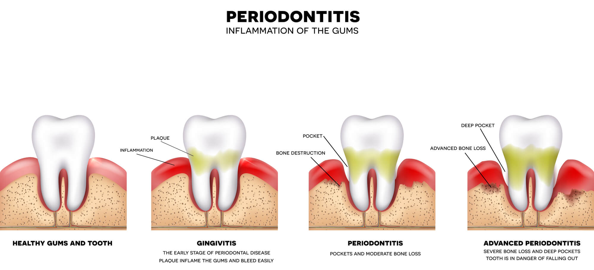 Who is the best Holistic Periodontist Palm Beach Gardens?